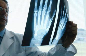 First Symptoms Rheumatoid Arthritis